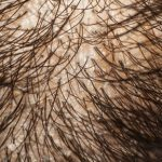 皮脂が多い人は薄毛に注意