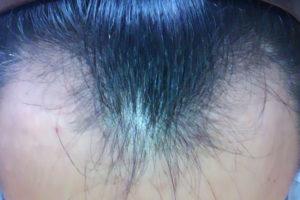 髪の毛生え際M字