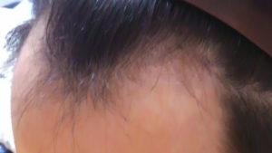 薄毛や禿げが再度回復できない限界はあるのか?